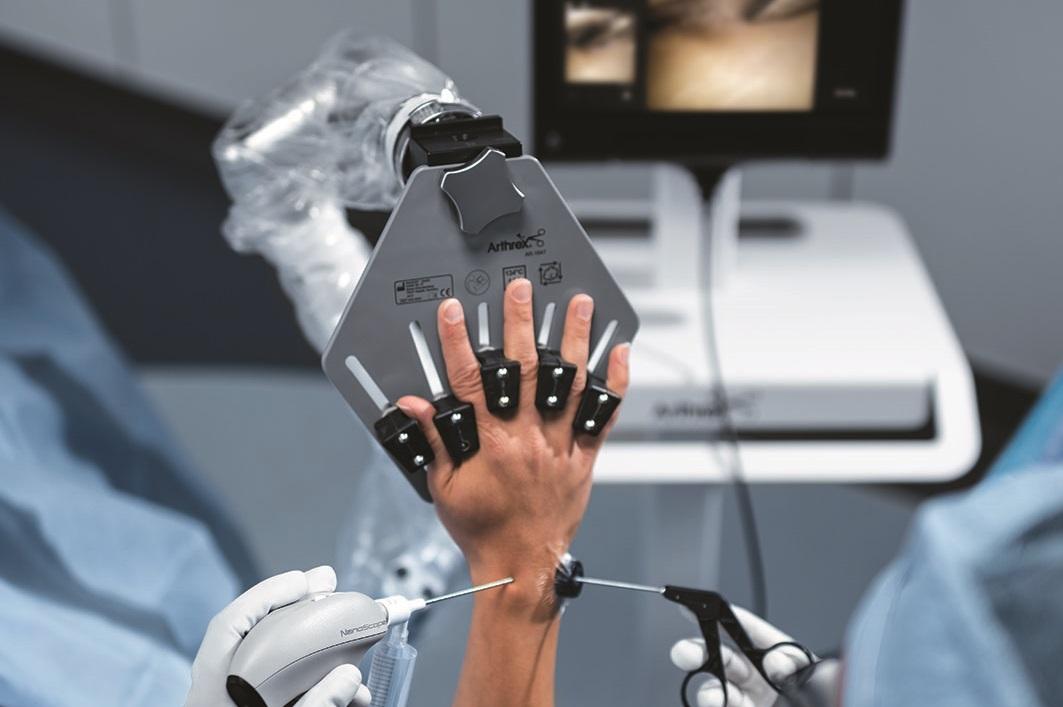 Nano-Arthroskopie an der Hand