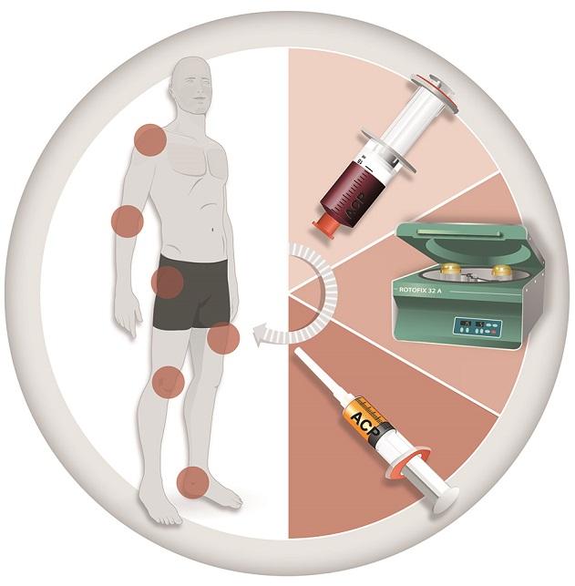 ACP Therapie erklärt mit Hilfe von Kreisdiagramm der Fa. Arthrex